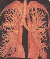 The airway tree in my lungs is clean.  I've never smoked, and never will.